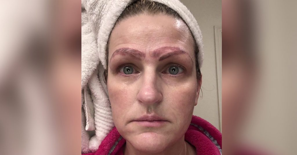'I looked hideous': Botched microblading procedure leaves metro woman with 'crazy brows'